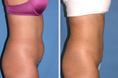 Before and After Photo of Liposuction Patient