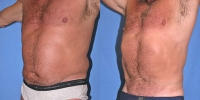 Abdominal Liposuction Photo