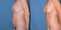 Tummy Tuck - Abdominoplasty Before and After Photo