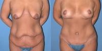 Body Contouring Surgery