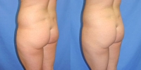 Brazilian Lift Patient 2