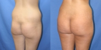 Brazilian Lift Patient 3