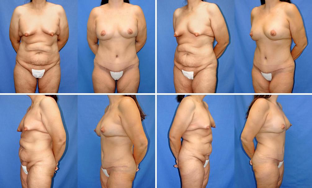 Breast Fat Transplant 47