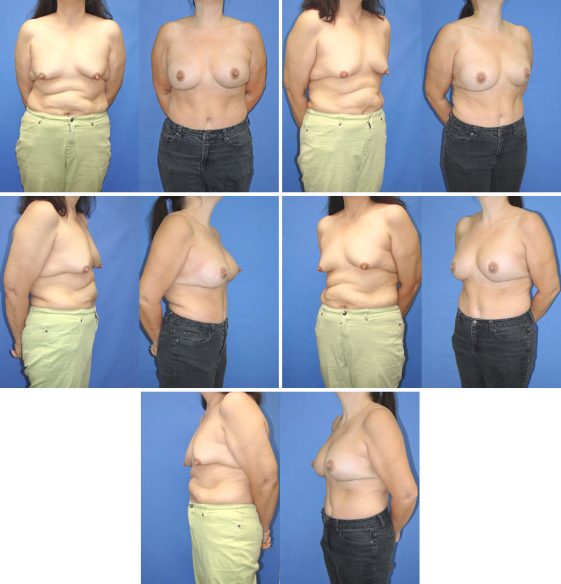 Fat Transfer Breast Augmentation Maryland & Virginia