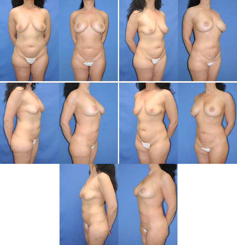 Natural Breast Augmentation & Enhancement with Fat Transfer
