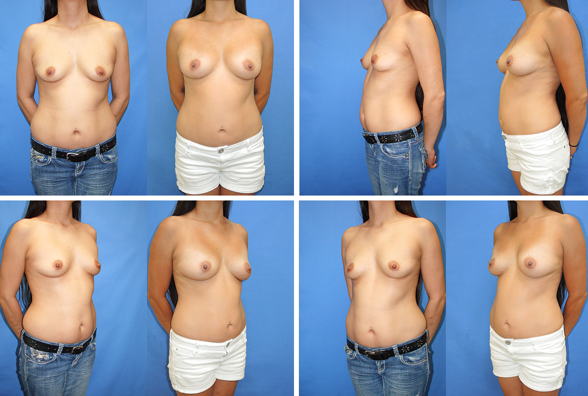 Breast Implants With Fat 112