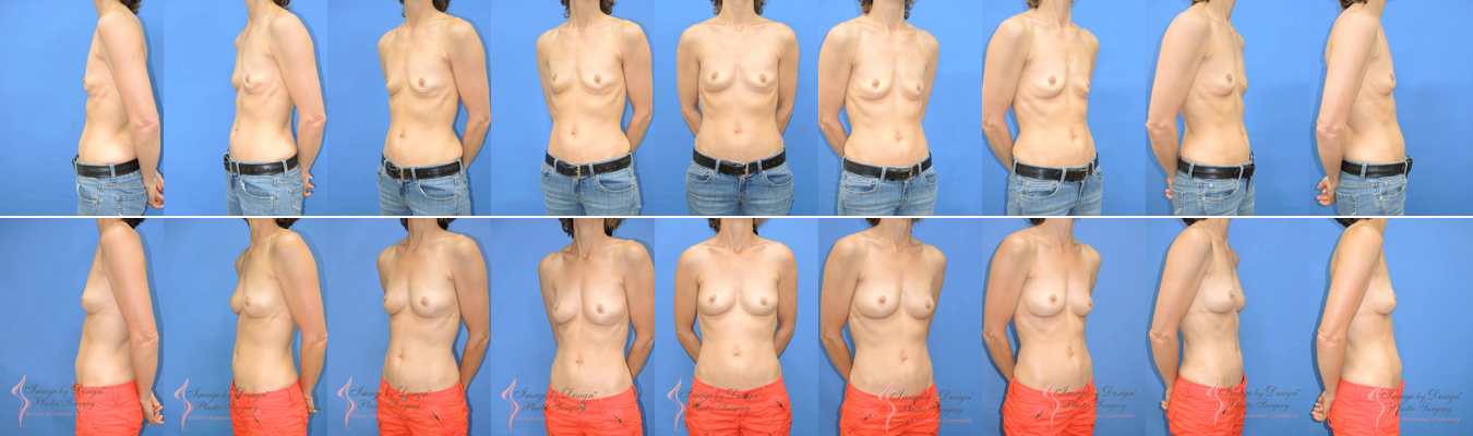 Breast Implants With Fat 12