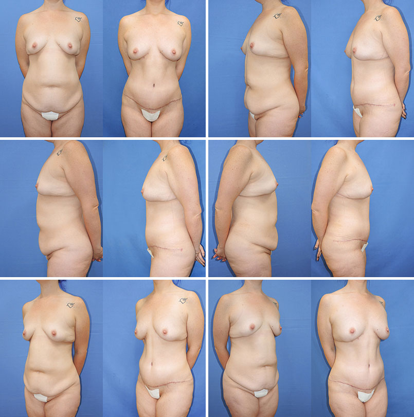 Breast Fat Women 20
