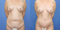 Breast Augmentation with Fat Grafting - Patient
