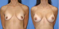 Patient with Saline Breast Implants