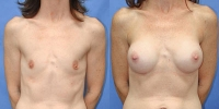 Patient with Breast Implants