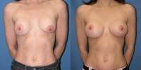 Breast Correction - Revision - Photos