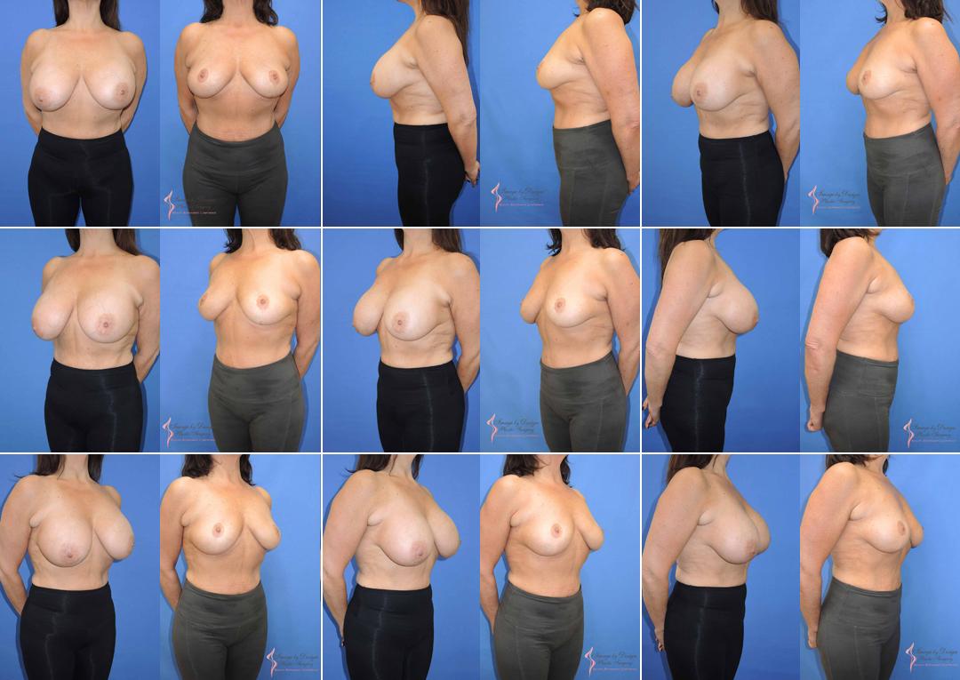 Buydaly elektrische Brust-Massager, Brust-Verbesserung