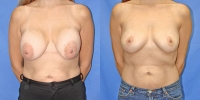 breastcorrection-6