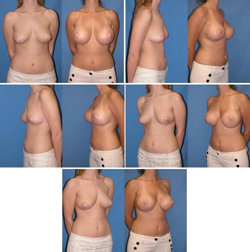 Boob implant picture