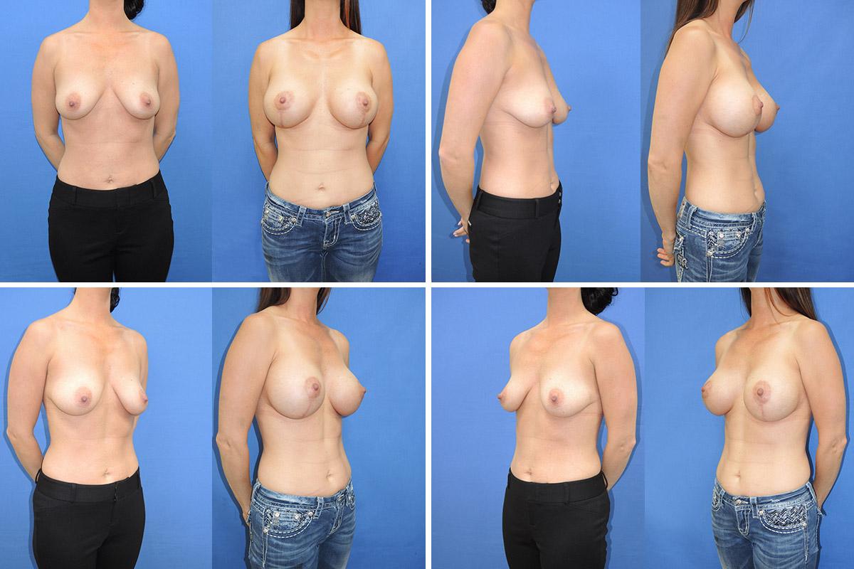 Augmentation Brust Brust Brust Brust Implantat Lift