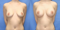 Breast Lift with Augmentation Photo