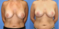 Breast Lift Surgery - Mastopexy Photo