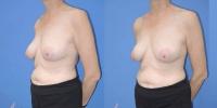 breastreconfg-set1-pt1