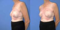 breastreconfg-set5-pt1
