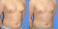 Chest Liposculpture Patient