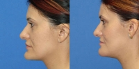 Chin Reshaping Photos