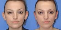 Ear Surgery Photos