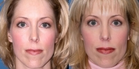Eyelid Lift Surgery - Blepharoplasty Patient
