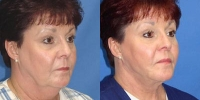 Face Liposuction Patient