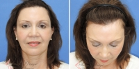 Browlift Before and After Photo