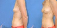 Breast Augmentation with Fat Grafting Patient