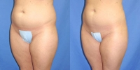 Lipostructure - Fat Grafting Photos