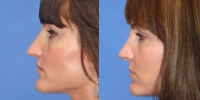 Rhinoplasty - Nose Surgery Before and After