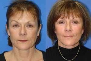 before and after photos of a facelift