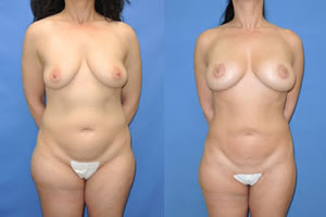 fat transfer augmentation patient in Michigan