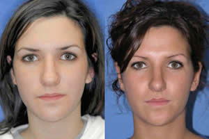 rhinoplasty patient in michigan